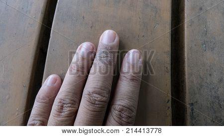 Psoriasis vulgaris fungus eczema on female finger. rash dermatological problem on dry skin