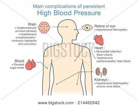 Main complications of persistent High Blood Pressure. Illustration about health and medical.