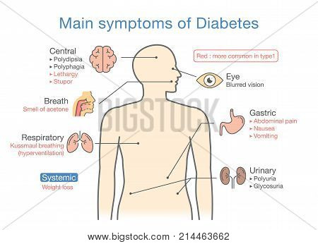 Main symptoms of Diabetes. Illustration about diagram for medical diagnosis of people disease.