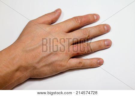 Hand dermatitis. Hand eczema closed on white background