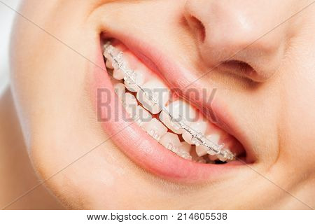Happy smile of young woman with clear dental braces