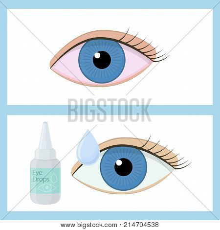 Eye drops on white background cartoon illustration of medical accessory for correct vision. Vector