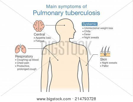 Main symptoms of Pulmonary Tuberculosis patient. Illustration about medical diagram of health check up.