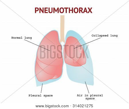 Collapsed Lung Or Pneumothorax, Lungs Disease, Isolated Vector Illustration On White Background.