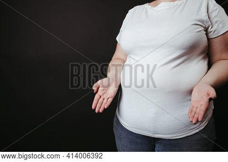 Overweight Woman Shrugging Her Hands In Perplexity