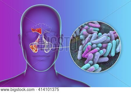 Sinusitis, Inflammation Of Paranasal Cavities. 3d Illustration Showing Purulent Inflammation Of Fron