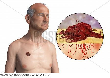 Melanoma, A Cancer Developing From Pigment-containing Cells Melanocytes, 3d Illustration Showing Mel