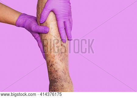 Close-up Of Skin With Varicose Veins On Senior Male Leg. Concept Of Dry Skin, Old Senior People, Var