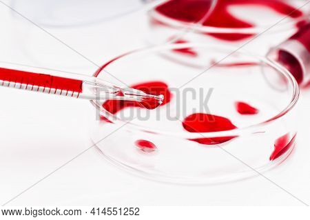 Test Tubes In The Laboratory Close Up. Blood Sampling, Blood Test, Blood Infection Test. Research Of