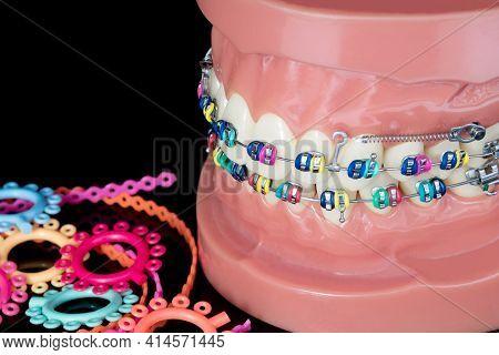 Close Up  Orthodontic Model  - Demonstration Teeth Model Of Varities Of Orthodontic Bracket Or Brace