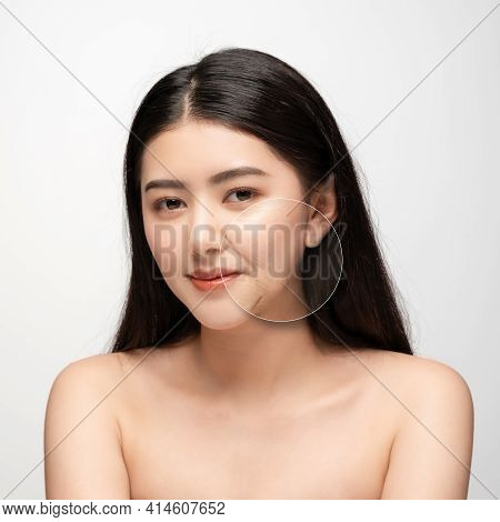 Comparison. Asian Woman With Problem And Clean Skin. Beauty Concept Skin Aging. Anti-aging Procedure