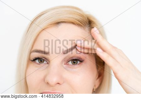 Woman Shows Drooping Eyelid For Plastic Surgery