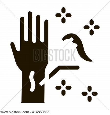 Application Of Leeches On Arm Glyph Icon Vector. Application Of Leeches On Arm Sign. Isolated Symbol