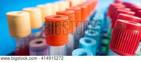 Blood sample in test tubes