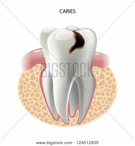 vector image tooth caries disease. Surface caries.Deep caries  Pulpitis Periodontitis.