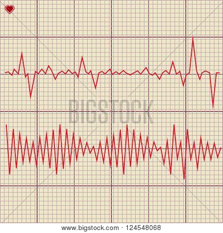 Vector Set of various cardiogram design elements. Cardiogram lines of healthy heart and heart stop 2