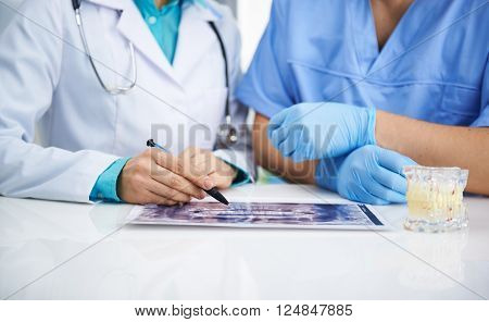 Portrait of female dentist and male surgeon examining teeth x-ray of a patient sitting at the desk in lab.