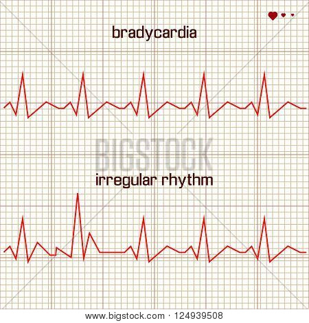 Vector illustration set Heart beats cardiogram 2
