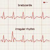 Vector illustration set Heart beats cardiogram 2 poster