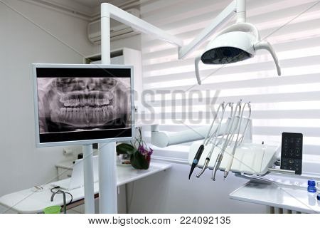 X-ray footage of patients teeth and apparatus in dental ambulance