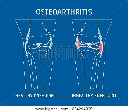 Thin Line Osteoarthritis Healthy and Unhealthy Knee Human Healthy Concept Style Design. Vector illustration