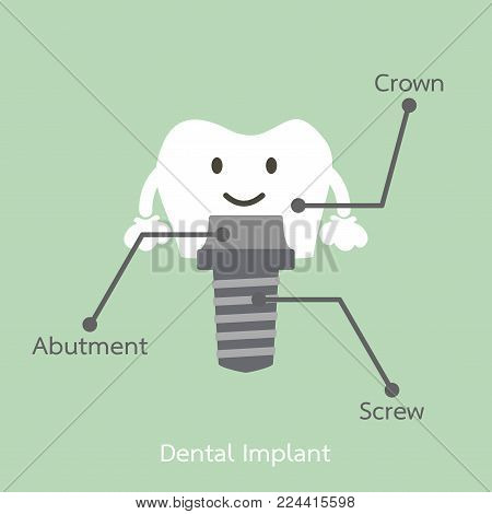structure of the dental implant with all parts disassembled, crown, abutment, screw - tooth cartoon vector flat style cute character for design