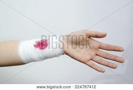 A bandaged bleeding injury on the forearm using a white bandage.
