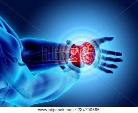 Wrist painful - skeleton x-ray, 3D Illustration medical concept.