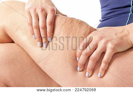 Cellulite and flabby skin. Female figure on a white background.
