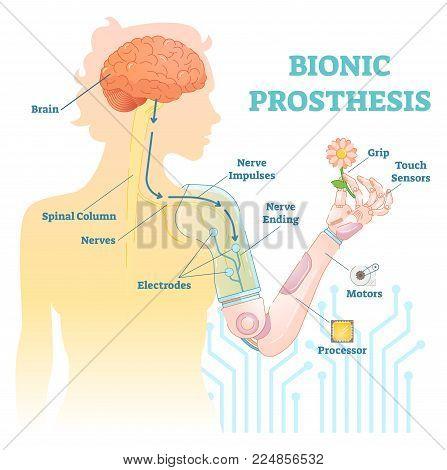 Bionic prosthesis - robotic female hand vector illustration.