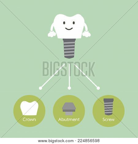 Structure Of The Dental Implant With All Parts Disassembled, Crown, Abutment, Screw - Tooth Cartoon
