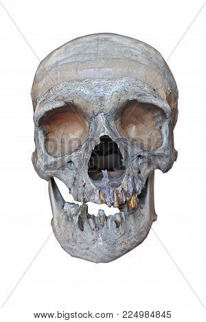 Human skull with a gold tooth on a white background