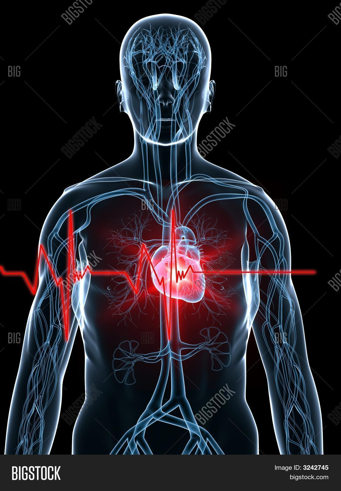 Heartbeat/Heart Attack Image & Photo (Free Trial) | Bigstock