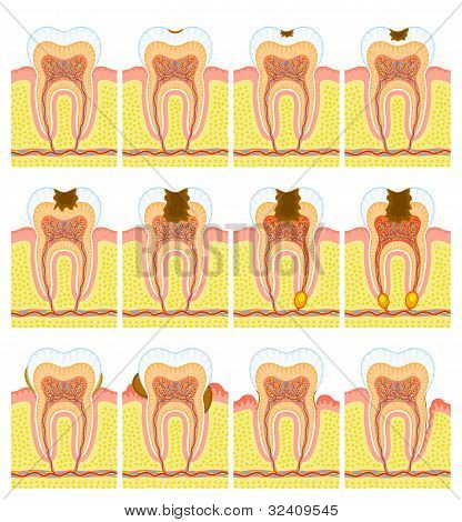 Some illustrations of an internal structure of tooth. poster