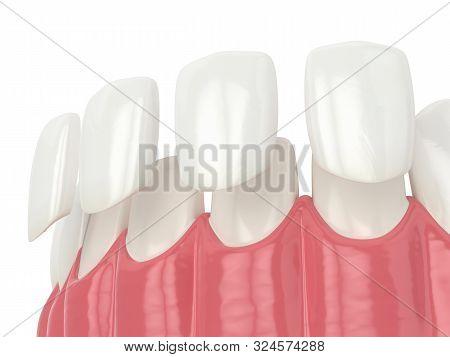 3d Render Of Teeth With Veneers Over White