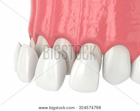 3d Render Of Upper Jaw With Four Veneers Over White