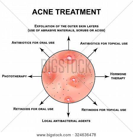 Acne Treatment. Pustules, Papules, Comedones, Blackheads, Acne On The Skin. Infographics. Illustrati