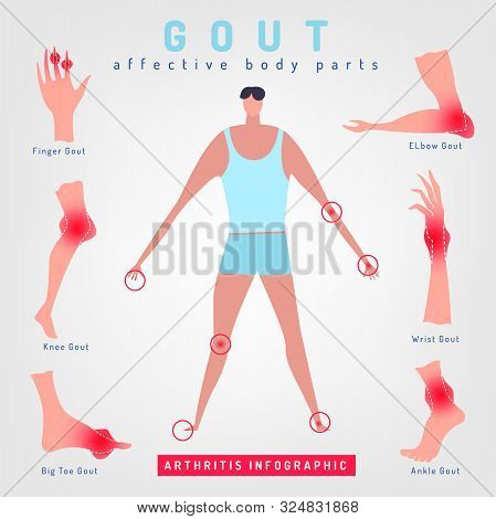Gout Arthritis Infographic. Joint Pain In Human Body. Editable Vector Illustration In Bright Colors