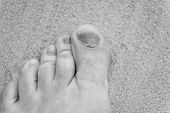 finger disease. hematoma. toe injury. bruise and trauma treatment. medical intervention required. panaritium uncomfortable footwear. nail fungus. healthy feet. Medicine concept. Trauma foot toes nails poster