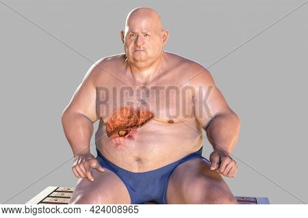 Fibrotic Liver In Obese Man, 3d Illustration. Concept Of Obesity And Inner Organs Diseases, Behavior