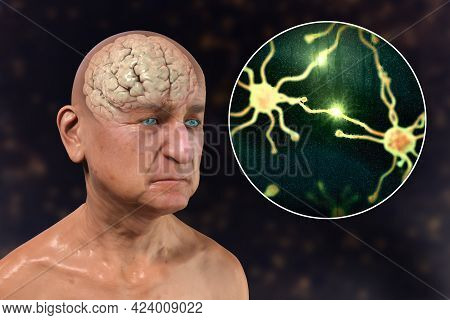 Dementia And Alzheimer's Disease Medical Concept, 3d Illustration. Memory Loss, Brain Aging. Concept