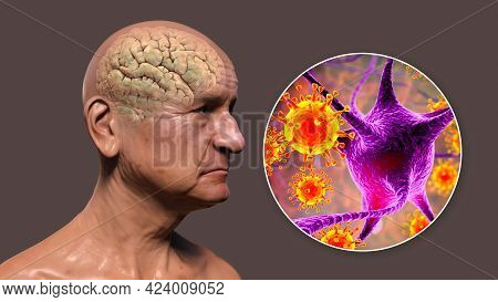 Infectious Etiology Of Dementia. Conceptual 3d Illustration Showing An Elderly Person With Progressi