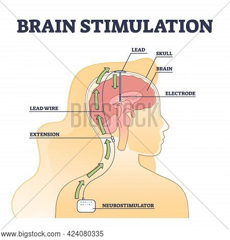Deep Brain Stimulation Procedure Educational Explanation Outline Diagram. Dbs Process Example With H