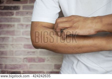 Man Suffering From Itching Skin, Close Up.