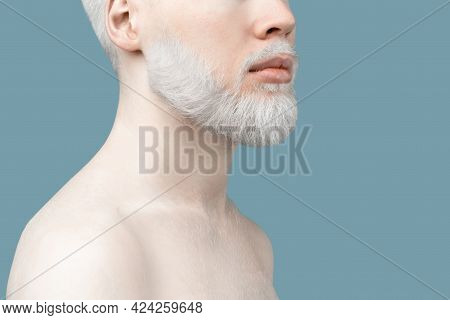 Unusual Bearded Albino Man With White Hair And Pale Skin Standing Over Turquoise Background, Free Sp