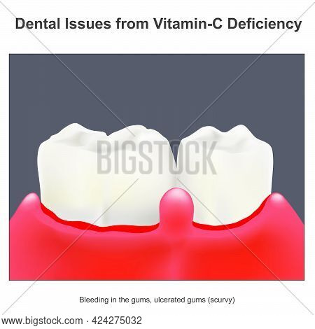 Dental Issues From Vitamin C Deficiency. Illustration About An Essential A Vitamin C For Dental Heal