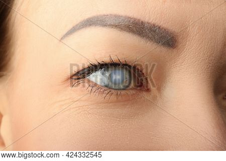 Closeup View Of Mature Woman Suffering From Cataract