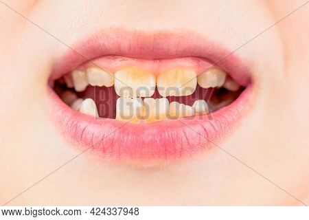 Bad Teeth Child. Portrait Boy With Bad Teeth. Child Smile And Show Her Crowding Tooth. Close Up Of U