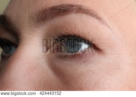 Closeup View Of Mature Woman With Eye Cataract