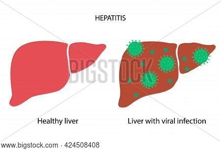Hepatitis Logo. Liver Inflammation Due To A Viral Infection Concept.healthy And Damaged Internal Org